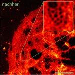 Neue, offene Software für hochauflösende Mikroskopie