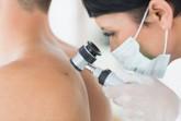 Beim Hautkrebs-Screening sucht der Arzt den Körper von Kopf bis Fuß auf verdächtige Pigmentmerkmale ab wie zum Beispiel Muttermale, Leberflecken oder Altersflecken. Foto: ©AOK/hfr.